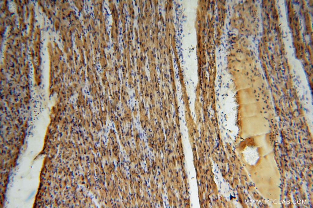 Myoglobin Antibody in Immunohistochemistry (Paraffin) (IHC (P))