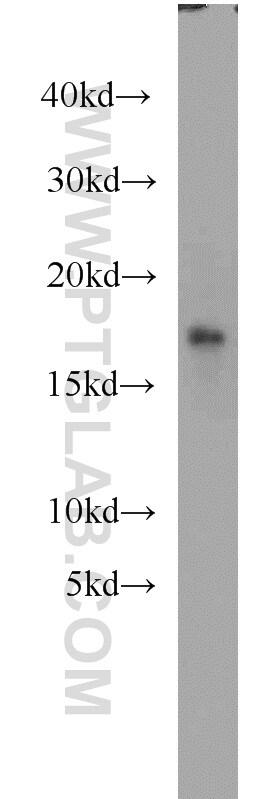 Myoglobin Antibody in Western Blot (WB)