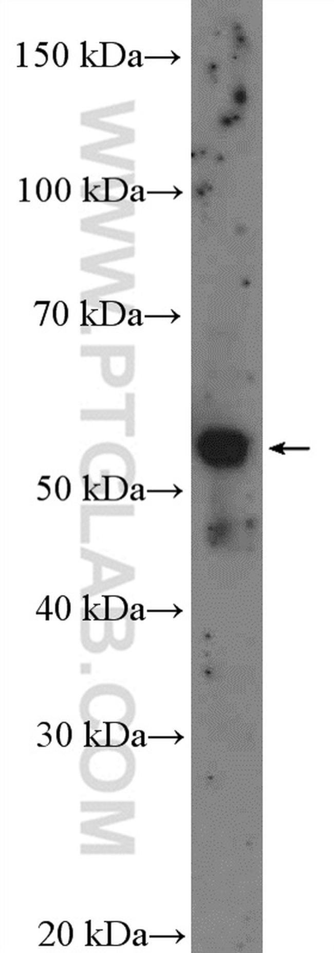 CYP39A1 Antibody in Western Blot (WB)