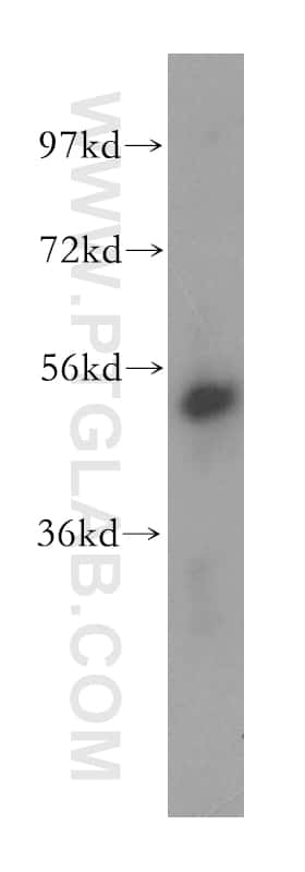 PMPCB Antibody in Western Blot (WB)
