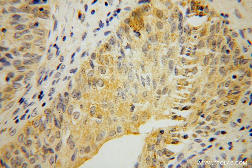MTHFD1L Antibody in Immunohistochemistry (Paraffin) (IHC (P))