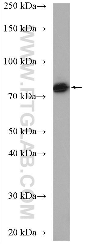 TARA Antibody in Western Blot (WB)