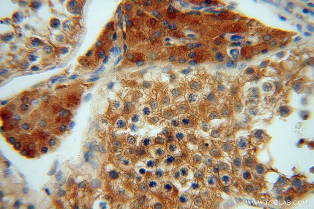 ATP6V1G1 Antibody in Immunohistochemistry (Paraffin) (IHC (P))