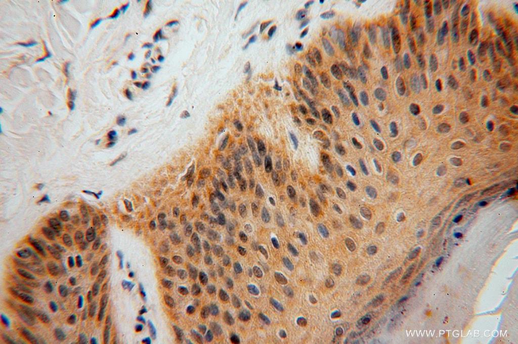 SMYD1 Antibody in Immunohistochemistry (Paraffin) (IHC (P))