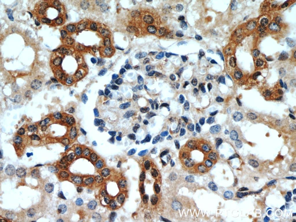 CCR2a Antibody in Immunohistochemistry (Paraffin) (IHC (P))