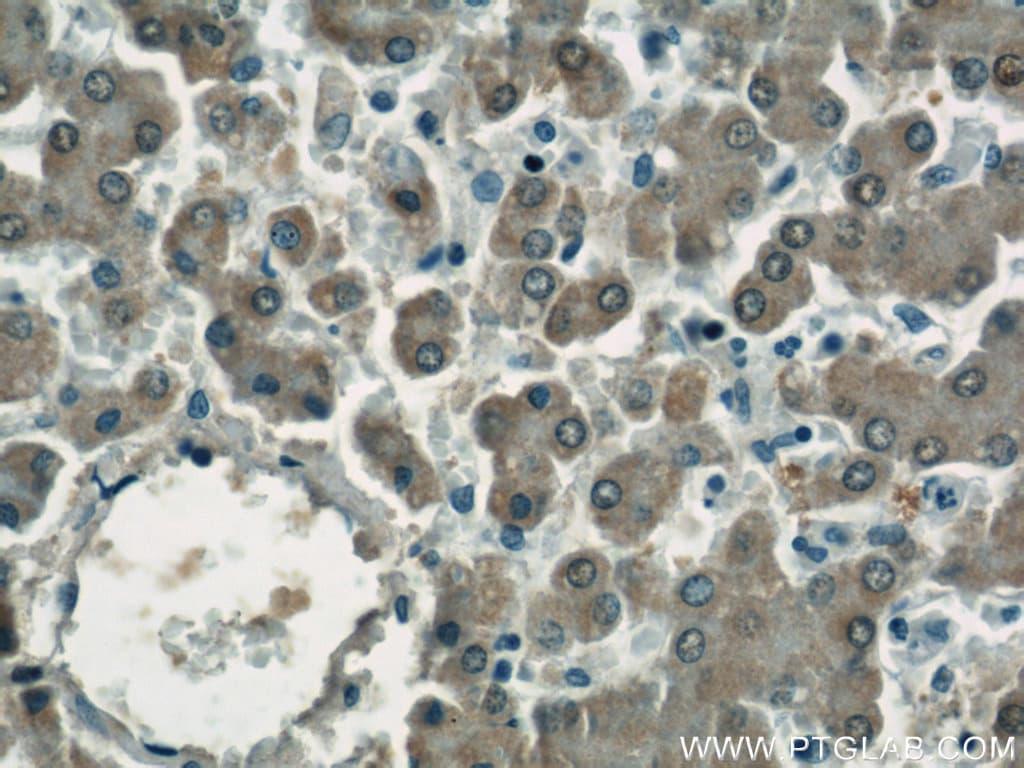 ASS1 Antibody in Immunohistochemistry (Paraffin) (IHC (P))