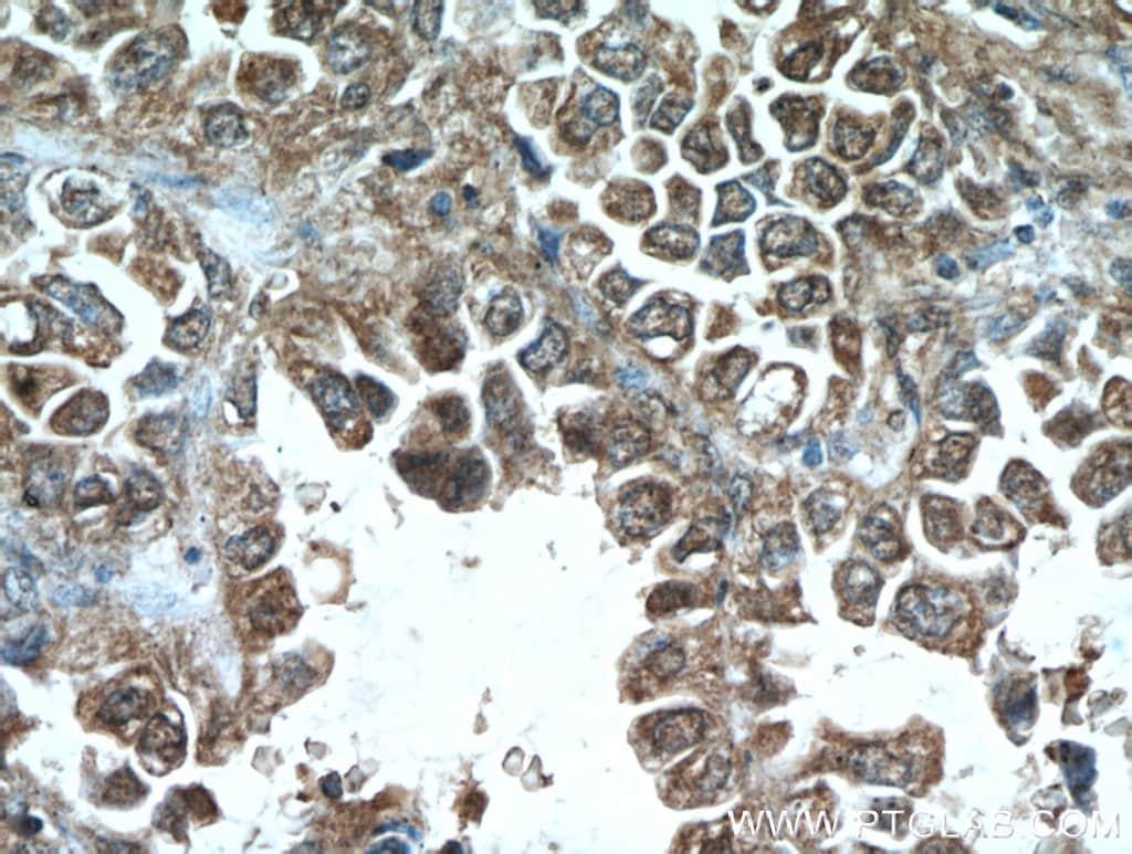 MCL1 Antibody in Immunohistochemistry (Paraffin) (IHC (P))