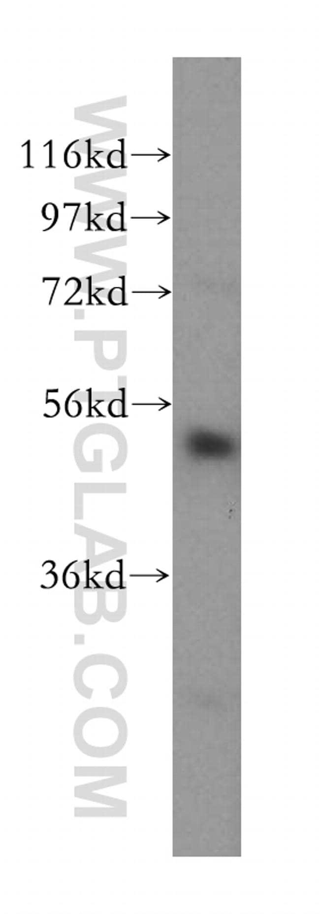 CAP1 Antibody in Western Blot (WB)