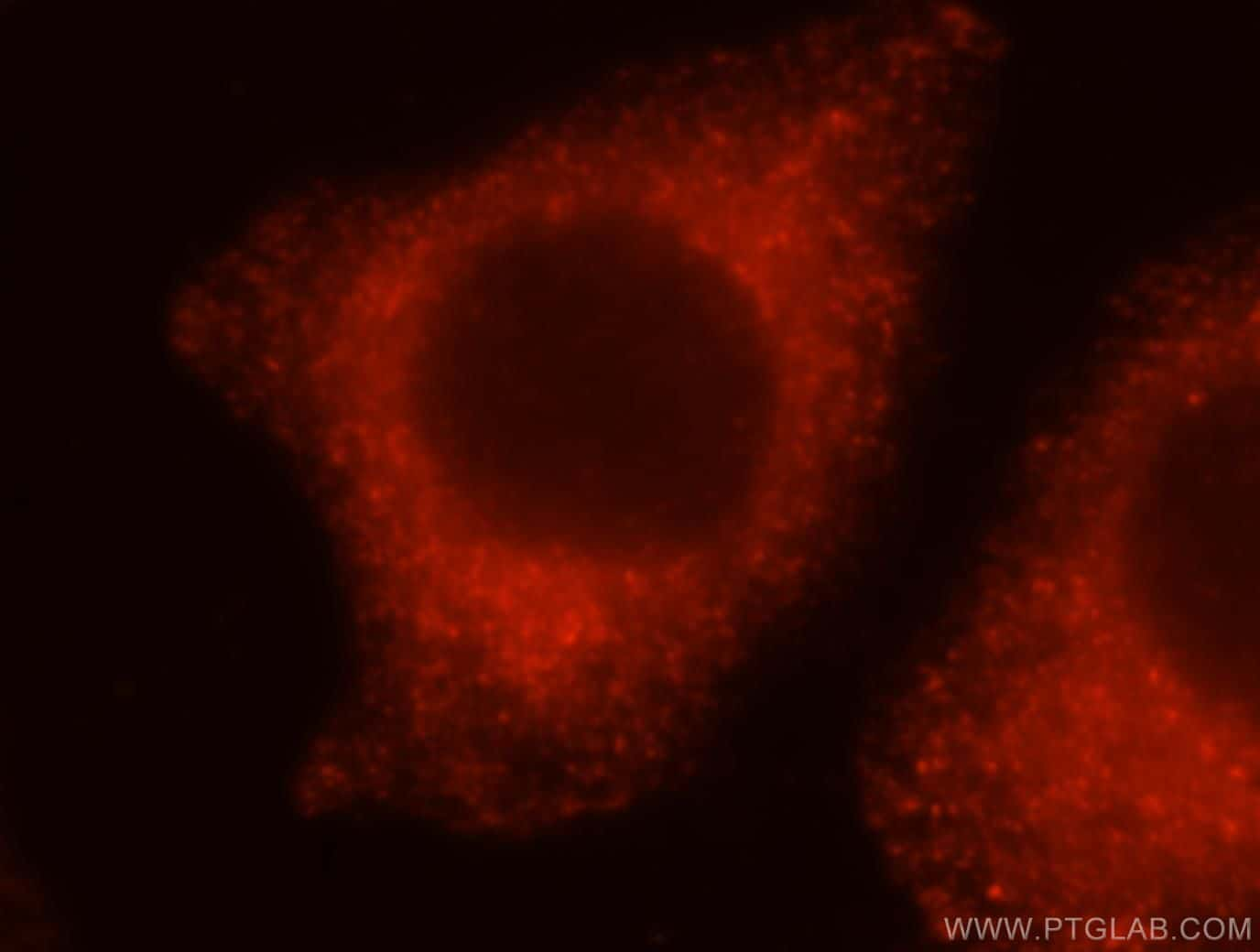 PRKCDBP Antibody in Immunofluorescence (IF)
