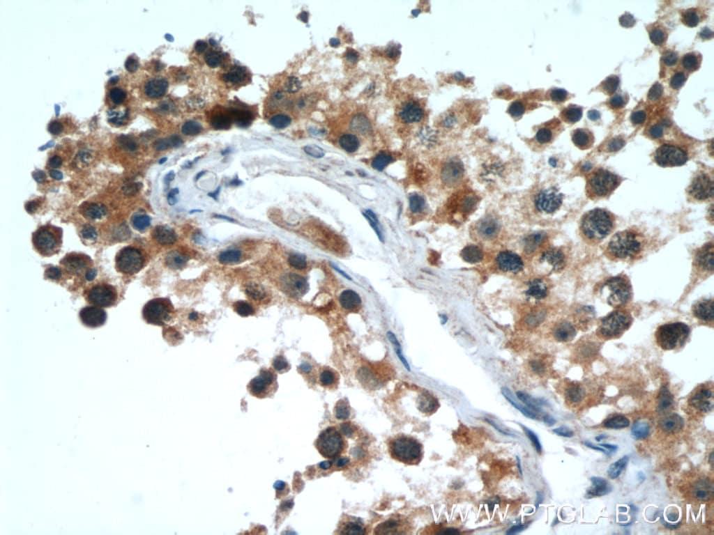FAF2 Antibody in Immunohistochemistry (Paraffin) (IHC (P))