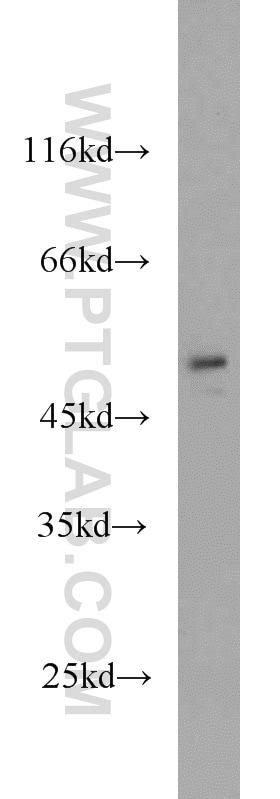 FAF2 Antibody in Western Blot (WB)