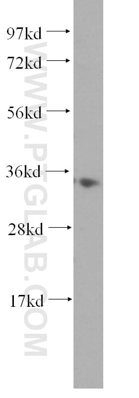 MRPL1 Antibody in Western Blot (WB)