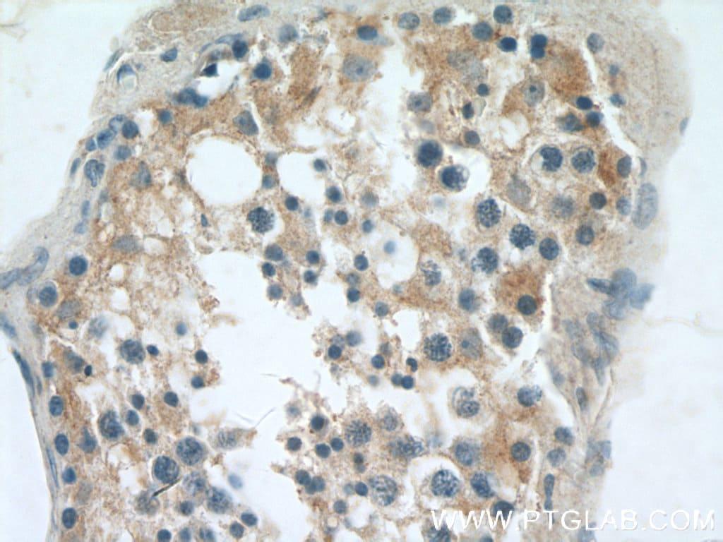 RGS14 Antibody in Immunohistochemistry (Paraffin) (IHC (P))