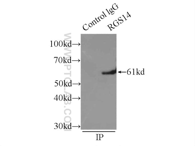 RGS14 Antibody in Immunoprecipitation (IP)