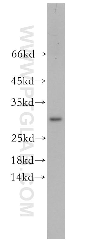 CHMP6 Antibody in Western Blot (WB)