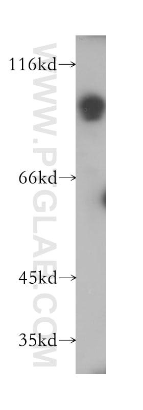 SLC3A1 Antibody in Western Blot (WB)