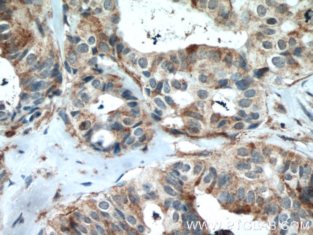 VAV1 Antibody in Immunohistochemistry (Paraffin) (IHC (P))