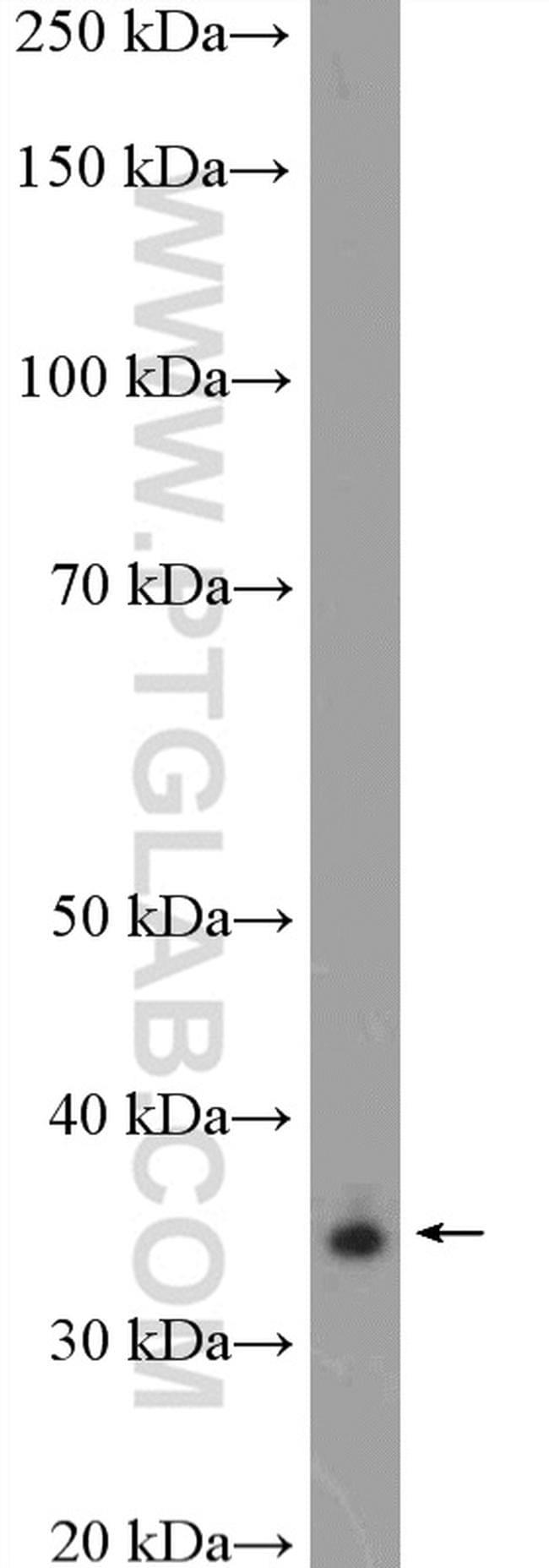 ALX1 Antibody in Western Blot (WB)