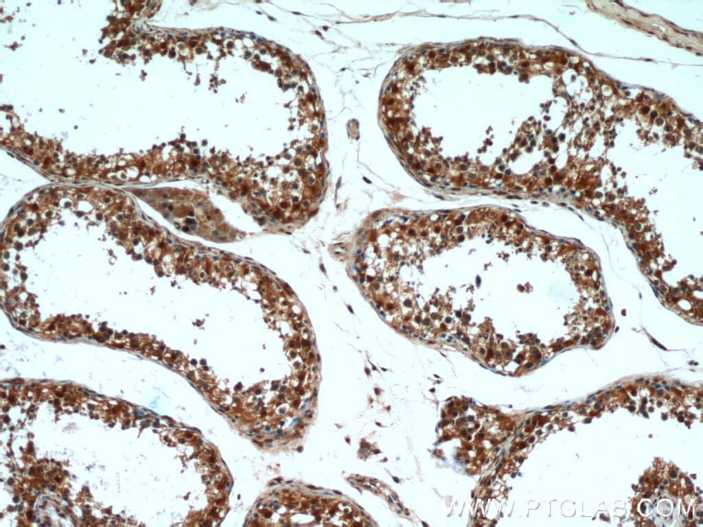 GSNOR/ADH5 Antibody in Immunohistochemistry (Paraffin) (IHC (P))