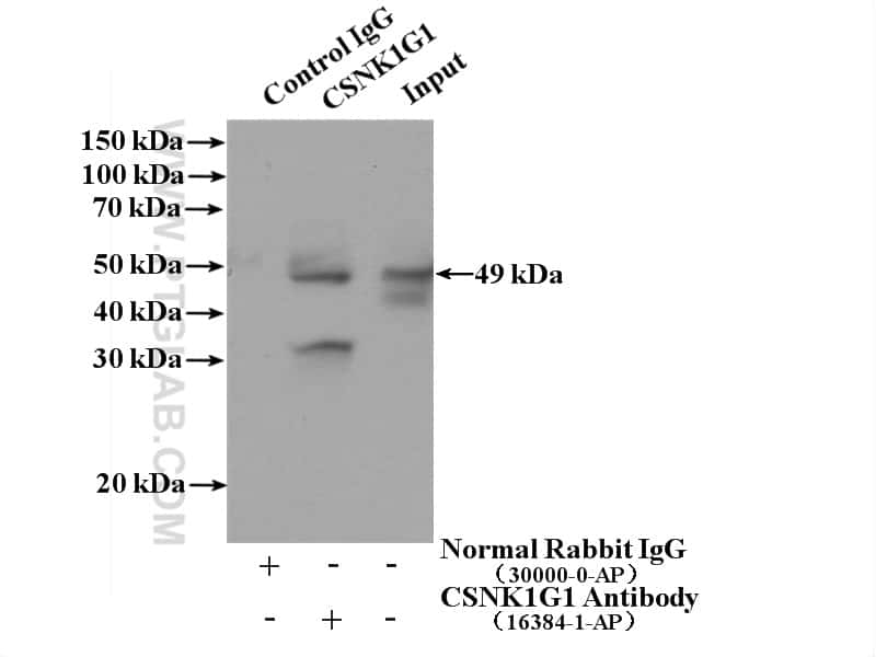 CSNK1G1 Antibody in Immunoprecipitation (IP)