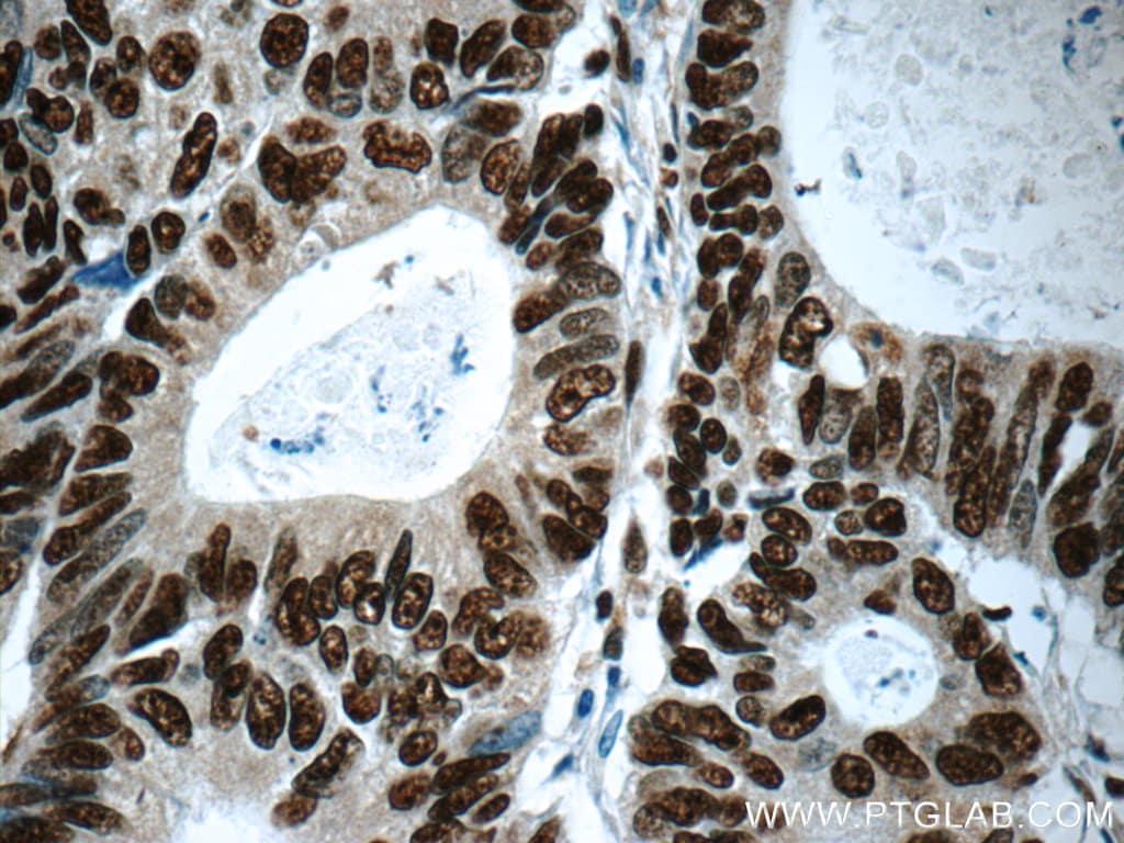 XRCC5/Ku80 Antibody in Immunohistochemistry (Paraffin) (IHC (P))