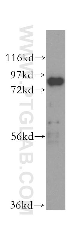 XRCC5/Ku80 Antibody in Western Blot (WB)