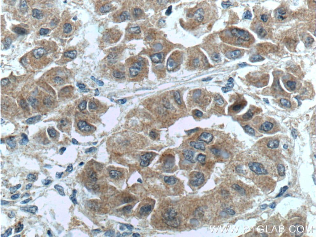 NRF2/NFE2L2 Antibody in Immunohistochemistry (Paraffin) (IHC (P))