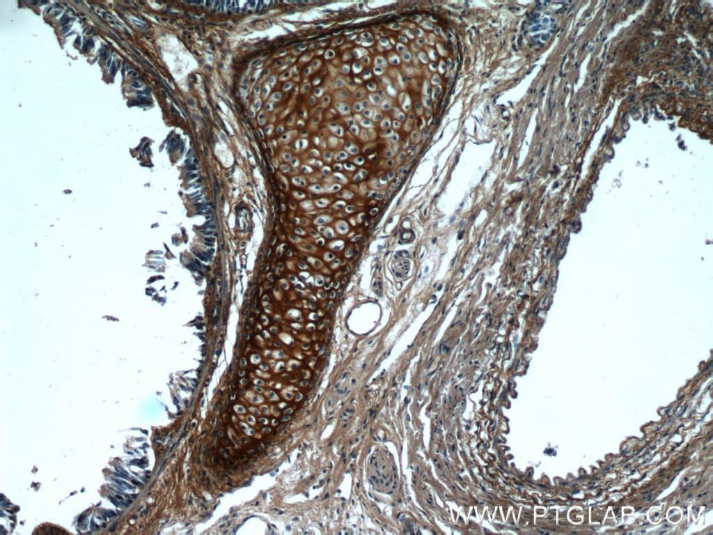 Biglycan Antibody in Immunohistochemistry (Paraffin) (IHC (P))