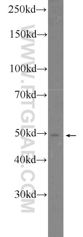 SMCR7/MID49 Antibody in Western Blot (WB)