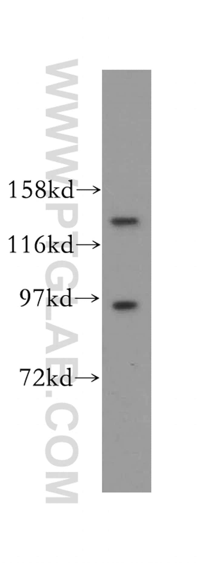 PAN2 Antibody in Western Blot (WB)