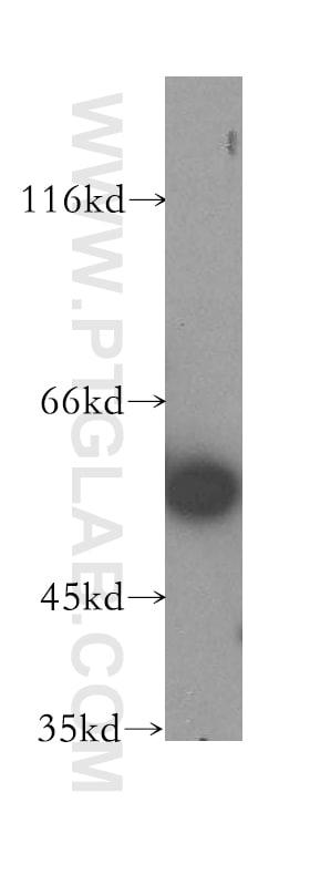 DLD Antibody in Western Blot (WB)