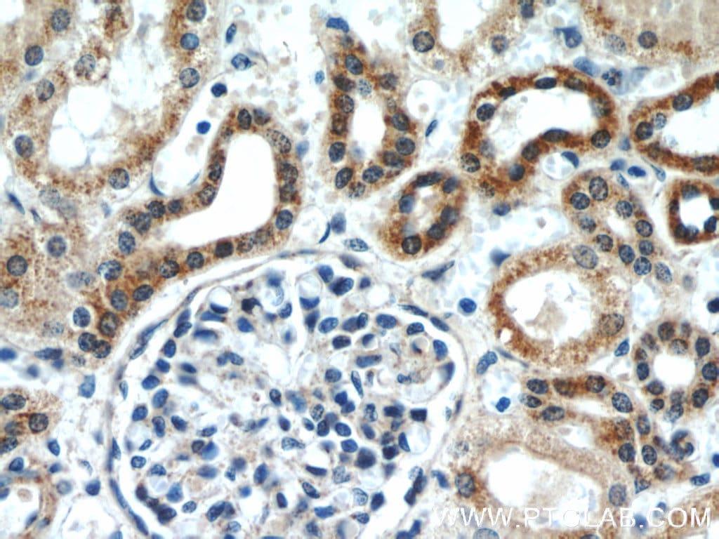 ERK1/2 Antibody in Immunohistochemistry (Paraffin) (IHC (P))