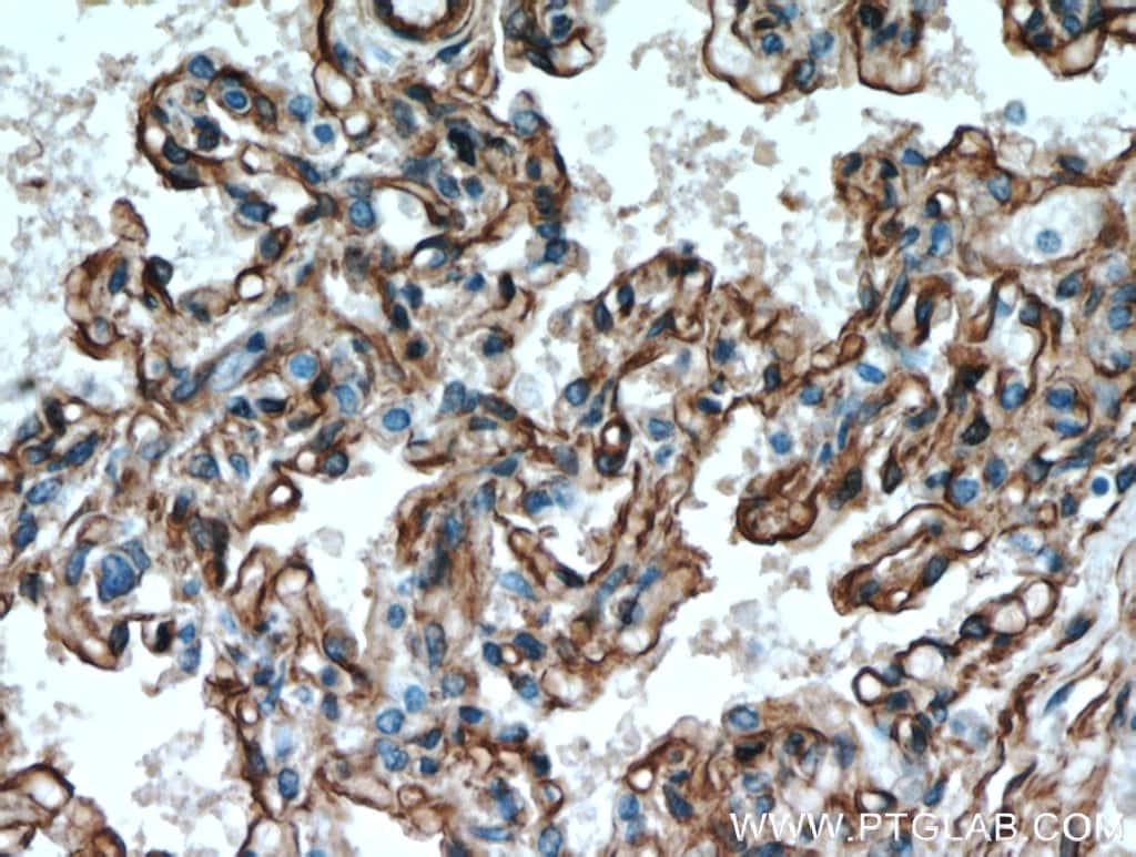 Caveolin-1 Antibody in Immunohistochemistry (Paraffin) (IHC (P))