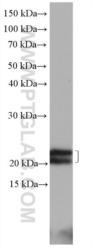 Caveolin-1 Antibody in Western Blot (WB)