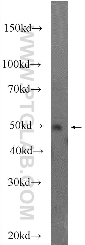 DEK Antibody in Western Blot (WB)
