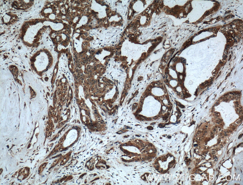MVP/LRP Antibody in Immunohistochemistry (Paraffin) (IHC (P))