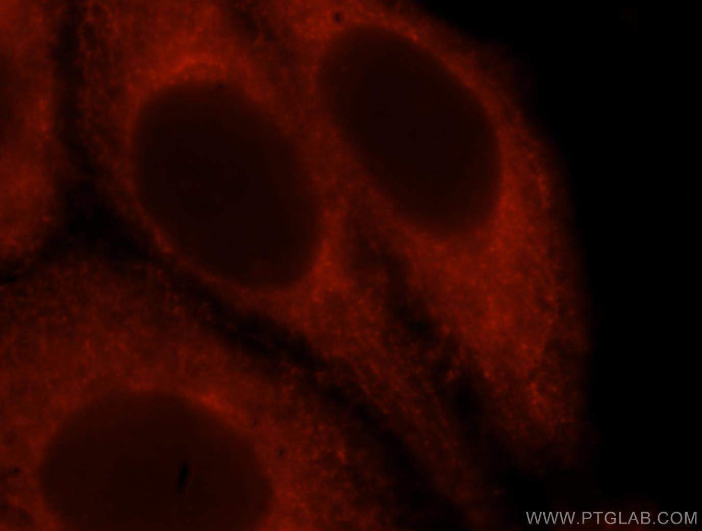 Moesin Antibody in Immunofluorescence (IF)