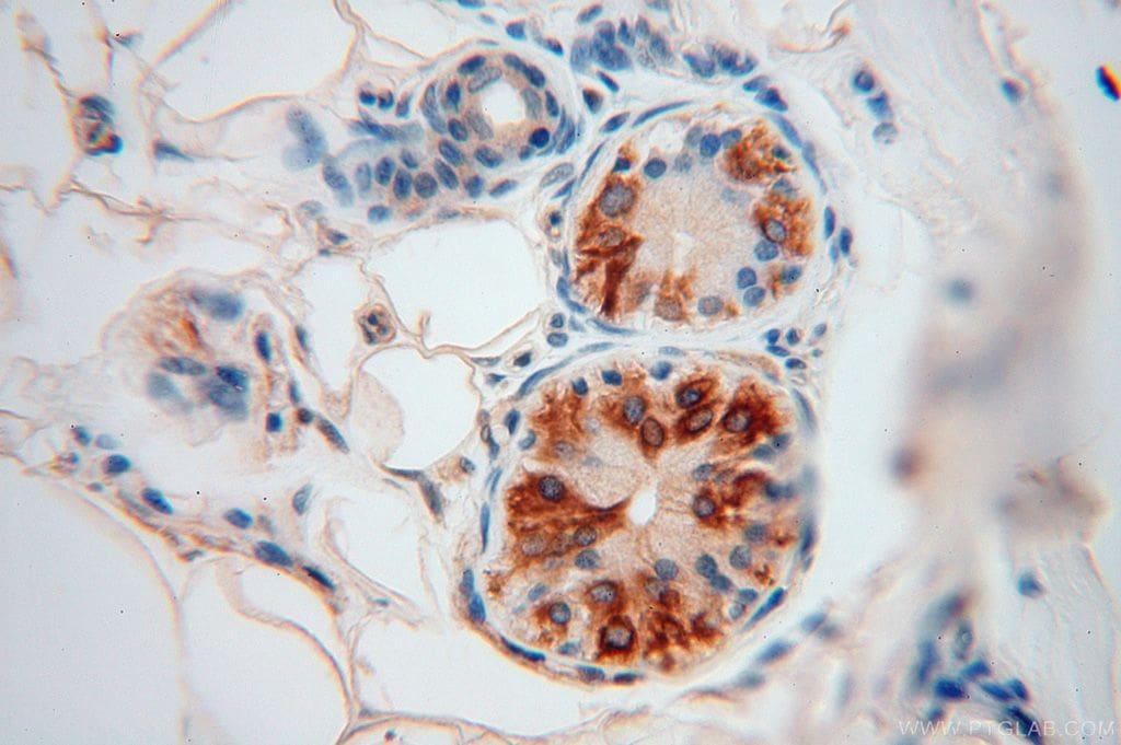 Moesin Antibody in Immunohistochemistry (Paraffin) (IHC (P))