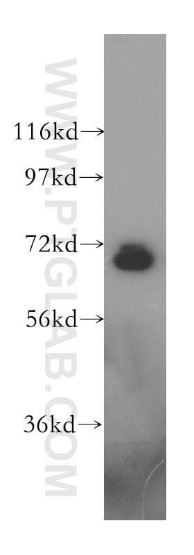 Moesin Antibody in Western Blot (WB)
