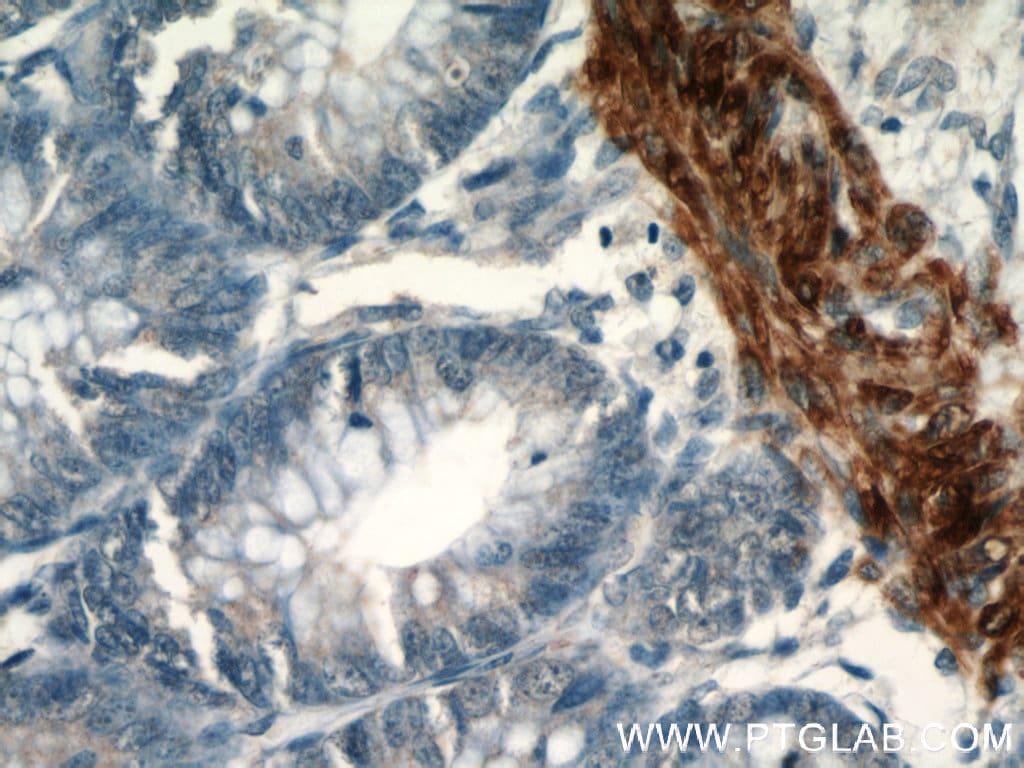 Desmin Antibody in Immunohistochemistry (Paraffin) (IHC (P))