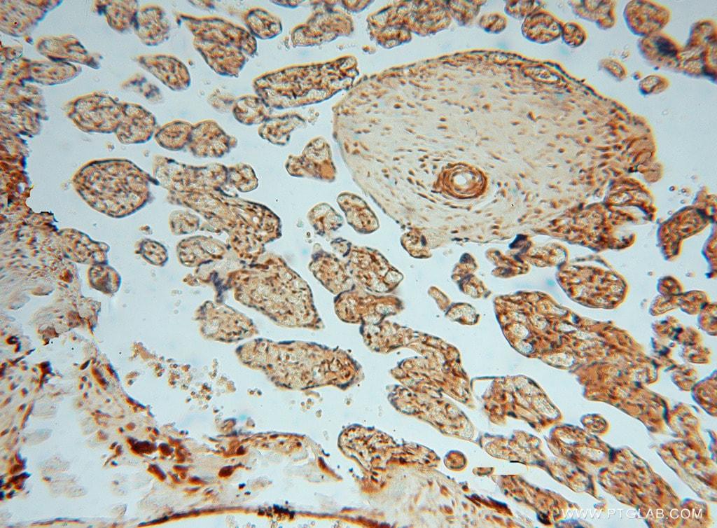 METTL6 Antibody in Immunohistochemistry (Paraffin) (IHC (P))