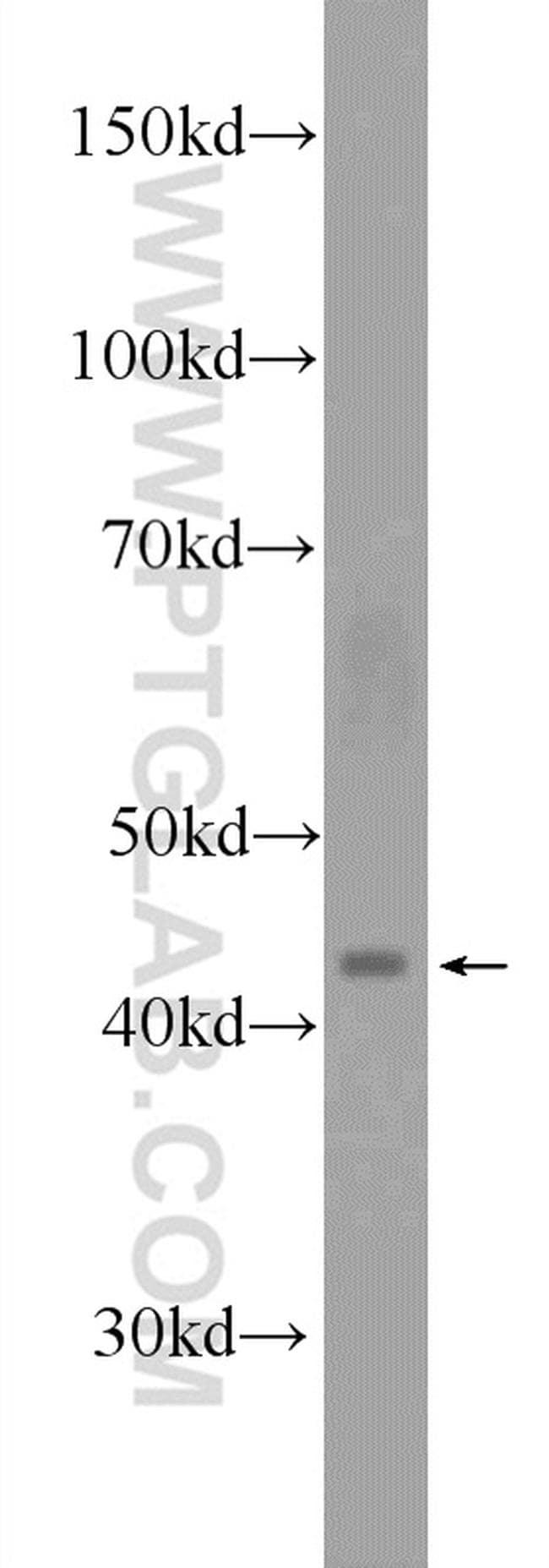 SMPDL3B Antibody in Western Blot (WB)
