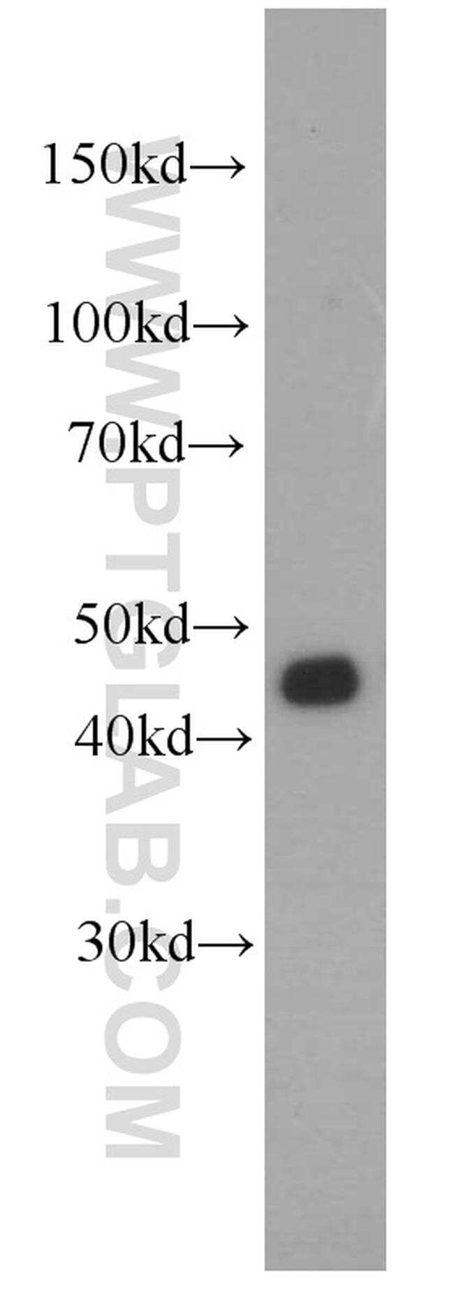 FUT6 Antibody in Western Blot (WB)