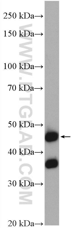 NUPL2 Antibody in Western Blot (WB)