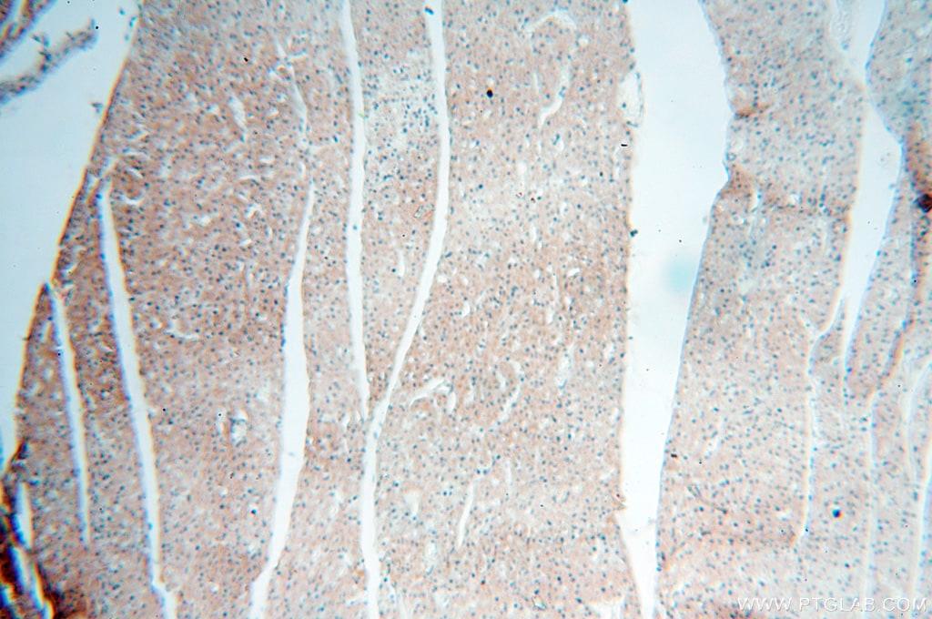 PITPNA Antibody in Immunohistochemistry (Paraffin) (IHC (P))