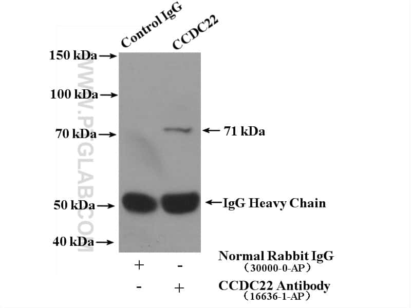 CCDC22 Antibody in Immunoprecipitation (IP)