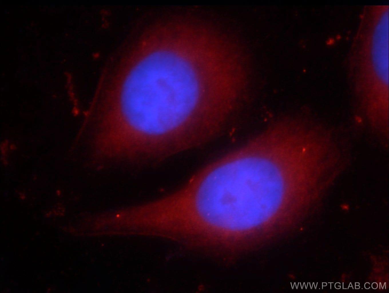 PPAR gamma Antibody in Immunofluorescence (IF)