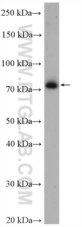 ZER1 Antibody in Western Blot (WB)