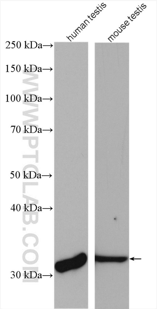 PRPS1L1 Antibody in Western Blot (WB)