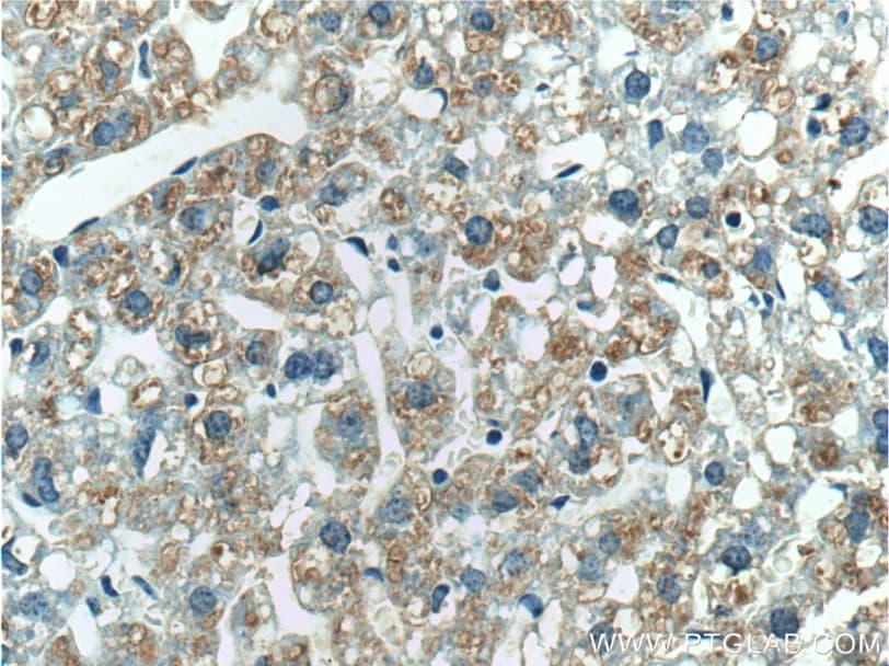 Haptoglobin Antibody in Immunohistochemistry (Paraffin) (IHC (P))